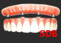 NobelGuide Teeth-in-an-Hour for Full mouth Implants in Dental Clinic Bangkok, Thailand