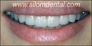 After Porcelain Veneers, Veneers Dental Clinic Thailand
