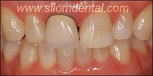 Before Porcelain Veneers, Dental Veneer Bangkok Dental Clinic