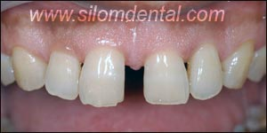 Before Porcelain Veneers, Dental Veneer Thailand Dental Clinic