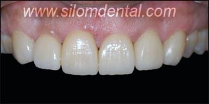 After Porcelain Veneers, Veneers Dental Clinic Bangkok
