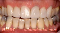 After Dental Makeover, dental crowns thailand