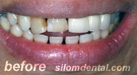 Before Dental Extreme Makeovers, dental crown clinic bangkok thailand