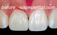 after dental extreme makeovers thailand, dental filling thailand dental clinic