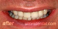 After Dental veneers bangkok thailand