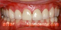 After Porcelain veneers Bangkok Thailand