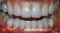 After Dental Extreme Makeovers thailand, porcelain veneer bangkok