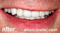 After Dental Extreme Makeovers, dental veneers