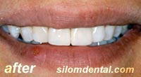 After Dental Makeovers, porcelain veneers