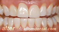 After Dental Extreme Makeover, dental veneers