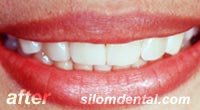 After smile makeover thailand, porcelain veneers thailand