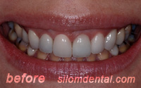 Before Dental Extreme Makeovers bangkok, porcelain veneers thailand