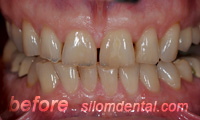 Before Dental Extreme Makeover, porcelain veneers
