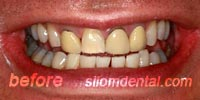 Before Dental veneers bangkok thailand