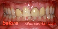 Before Porcelain veneers Bangkok Thailand
