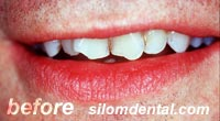 Before Dental Extreme Makeovers, dental veneers