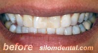 Before Dental Makeovers, porcelain veneers