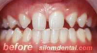 Before smile makeover dental clinic, porcelain veneer dental clinic