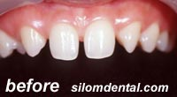 Before smile makeovers thailand dental clinic, porcelain veneers thailand dental clinic