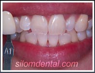 after Laser teeth whitening