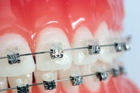 damon braces bangkok in dental orthodontics thailand