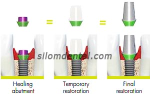 straumann bone level implant consistent emergence profiles